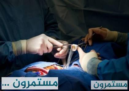 اندلاع نيران في صدر مريض أثناء عملية جراحية!