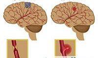 الدماغية