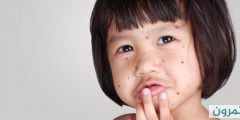 tbl diseases disease 103 34530d8e2d4 c3e6 49a4 8903 f67572e7a173