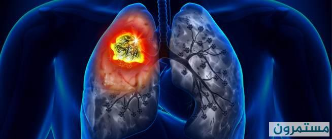 سرطان الرئة Lung Cancer